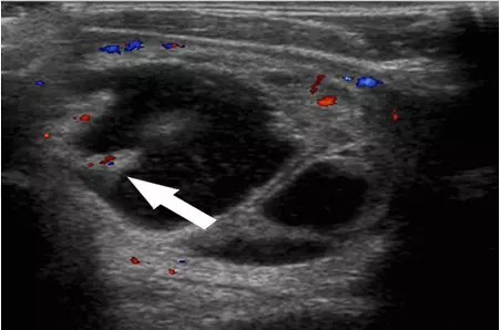 Atypical thyroid papillary carcinoma microcalcification of ultrasound.png