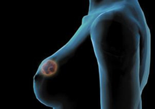 What is breast hyperplasia?